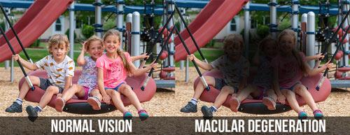 Macular Degeneration Example