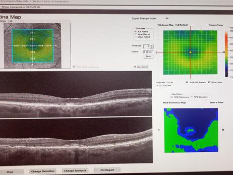 Retina OCT